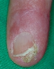 localisation: periungual (fingernail), diagnosis: Bowen's Disease