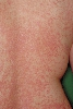 localisation: back, diagnosis: Lichen Planus Exanthematicus