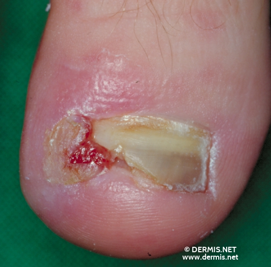 localisation: toe diagnosis: Unguis Incarnatus