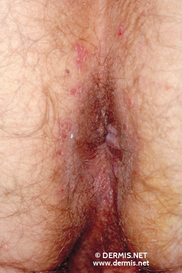 localisation: peri-anal  region diagnosis: Secondary Lues