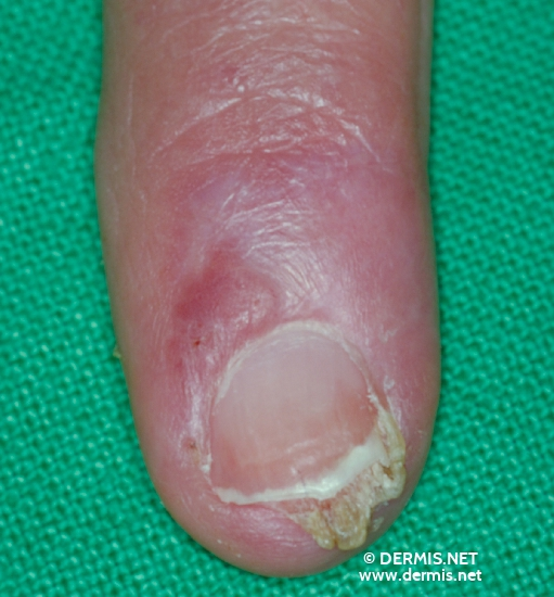 localisation: periungual (fingernail) diagnosis: Bowen's Disease