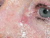 localisation: angle of the eye, diagnosis: Basal Cell Carcinoma