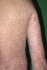 localisation: back, upper arms, diagnosis: Erythema Dyschromicum Perstans