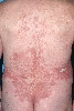 localisation: back, diagnosis: Bullous Pemphigoid