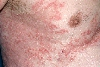 localisation: axilla, chest, diagnosis: Bullous Pemphigoid
