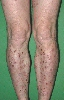 localisation: lower leg, diagnosis: Reactive Perforating Collagenosis