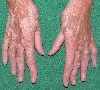 localisation: hands, back of the hands, diagnosis: Vitiligo