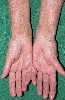 localisation: palms, wrists, lower arms, diagnosis: Vitiligo