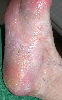 localisation: sole, diagnosis: Mycosis Fungoides