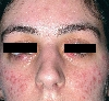 Lokalisation: Gesicht, Diagnose: Lupus miliaris disseminatus (faciei)