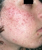 Lokalisation: Wange, Diagnose: Lupus miliaris disseminatus (faciei)