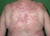 localisation: back, diagnosis: Subacute Cutaneous Lupus Erythematosus SCLE