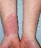 localisation: lower arms, diagnosis: Allergic Contact Dermatitis, Acute & Chronic
