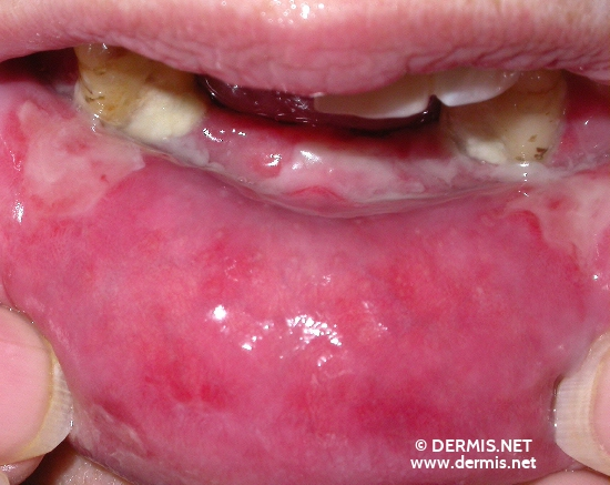 localisation: internal aspect of the lower lip diagnosis: Pemphigus Vulgaris