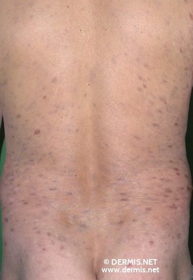 localisation: back diagnosis: Erythema Dyschromicum Perstans