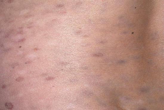 erythema dyschromicum perstans #10