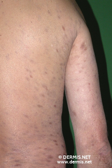 localisation: back upper arms diagnosis: Erythema Dyschromicum Perstans