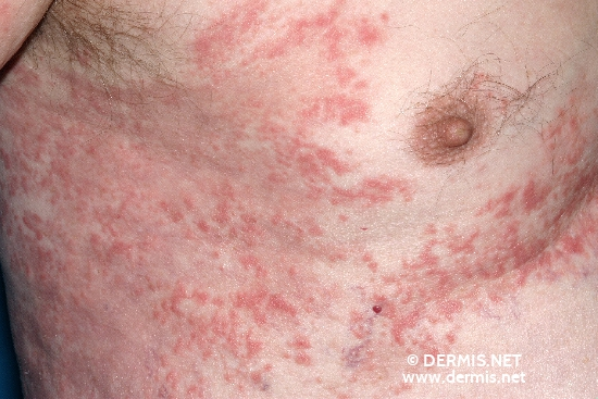 localisation: axilla chest diagnosis: Bullous Pemphigoid