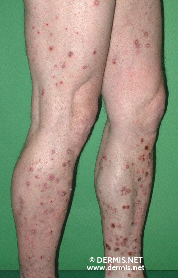 localisation: legs diagnosis: Reactive Perforating Collagenosis