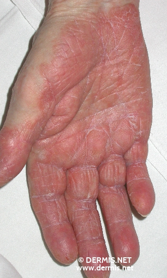 localisation: Handinnenfläche Diagnose: Mycosis fungoides