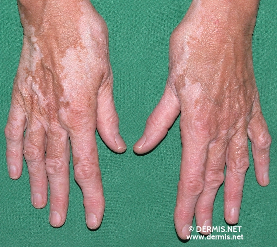 localisation: hands back of the hands diagnosis: Vitiligo