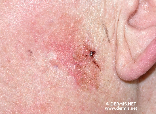 localisation: cheek diagnosis: Superficial Basal Cell Carcinoma