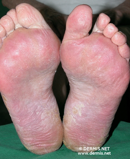 localisation: sole diagnosis: Mycosis Fungoides