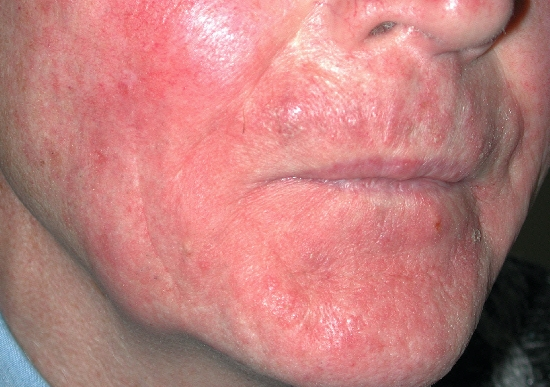 localisation: face diagnosis: Perioral Dermatitis