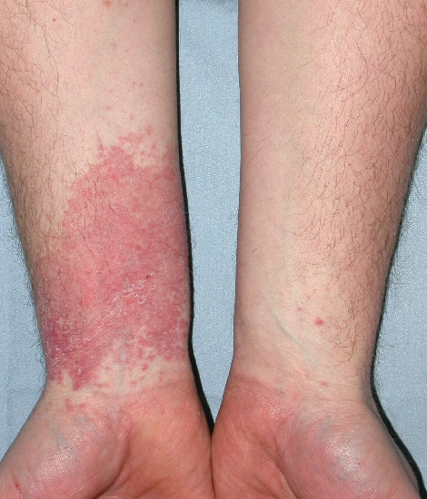 localisation: lower arms diagnosis: Allergic Contact Dermatitis, Acute & Chronic