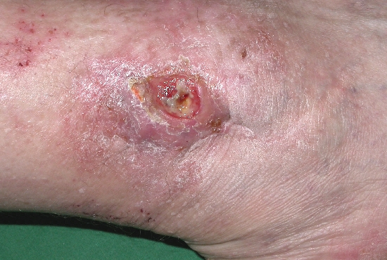 localisation: lower leg diagnosis: Malignant Fibrous Histiocytoma
