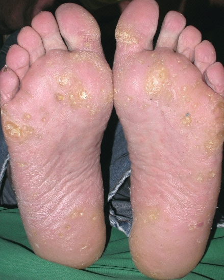localisation: sole diagnosis: Keratosis Palmoplantaris Papulosa