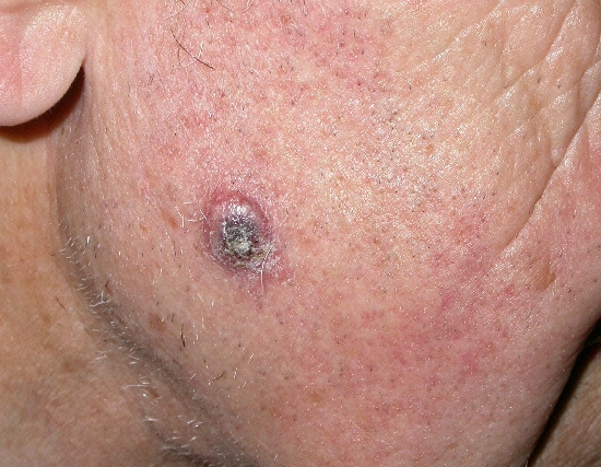 localisation: cheek diagnosis: Basal Cell Carcinoma