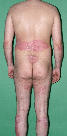 localisation: total body view diagnosis: Psoriasis Vulgaris, Chronic Stationary Type