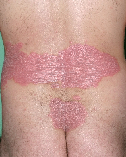 localisation: lower back diagnosis: Psoriasis Vulgaris, Chronic Stationary Type