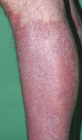 localisation: lower leg diagnosis: Psoriasis Vulgaris, Chronic Stationary Type