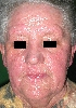 localisation: face, diagnosis: Persistent Light Reaction, Allergic Contact Dermatitis, Acute & Chronic