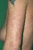 localisation: upper arms, diagnosis: Livedo Reticularis