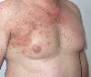 localisation: chest, diagnosis: Skin Metastases of Melanoma / Skin Tumours, Radiodermatitis, Chronic