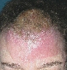 localisation: forehead, diagnosis: Angiosarcoma