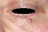 localisation: lower eyelid, diagnosis: Nevocytic Nevus