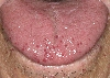 localisation: tongue, diagnosis: Rendu-Osler Syndrome