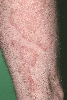 localisation: upper leg, diagnosis: Tinea Corporis