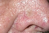 localisation: nose, diagnosis: Basal Cell Carcinoma, Morpheiform
