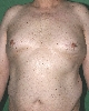 localisation: trunk, diagnosis: Hereditary Dysplastic Nevus Syndrome