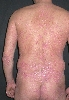 localisation: back, diagnosis: Psoriasis Vulgaris, Chronic Stationary Type