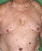 localisation: abdomen, diagnosis: Superficial Spreading Melanoma (SSM)