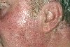 localisation: ear, cheek, diagnosis: Bowen's Disease