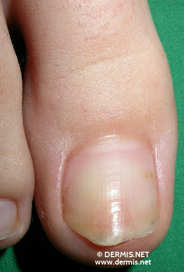 localisation: toenail diagnosis: Exostosis, Subungual