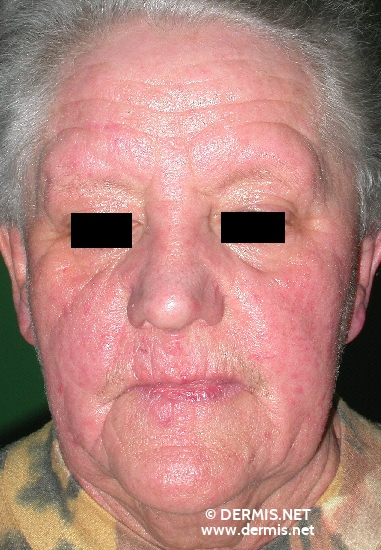 localisation: face diagnosis: Persistent Light Reaction Allergic Contact Dermatitis, Acute & Chronic