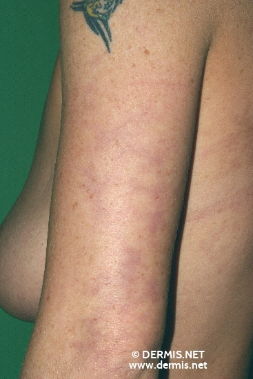 localisation: upper arms diagnosis: Livedo Reticularis